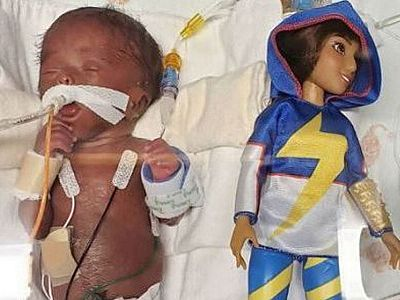 Baby Kallie born smaller than a Barbie doll weighing 13oz goes home after 150 days