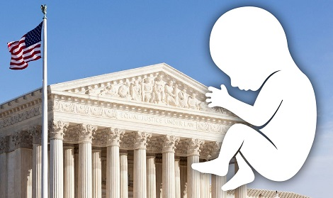 US Supreme Court to decide on abortion ban